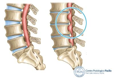 stenosi-vertebrale