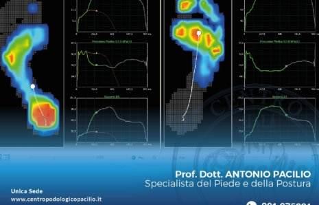 Analisi computerizzata della postura