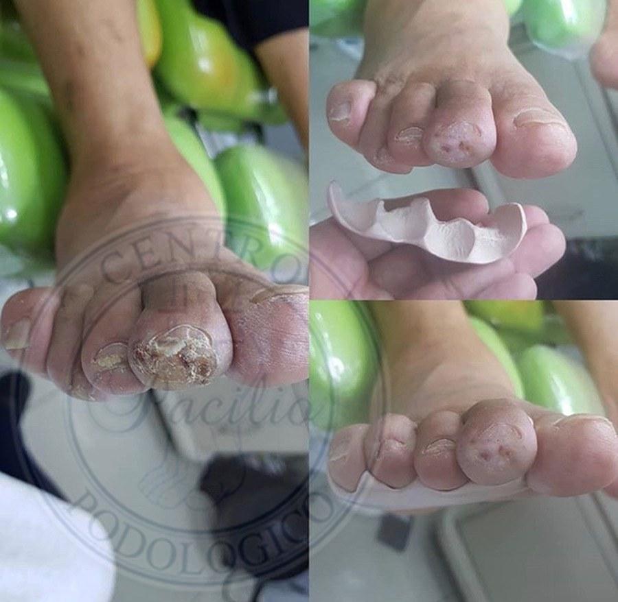 Ortesi podologica in silicone medicale su misura per pregressa ulcerazione a livello apicale del secondo dito del piede