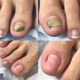 pre e post trattamento Podologico di unghia del Piede con micosi