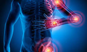 dolori articolari mani braccia anca