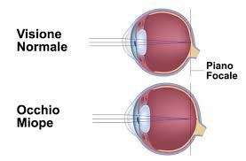 oculistica miopia
