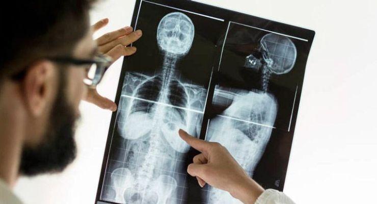 Principales localizaciones del cáncer ocupacional