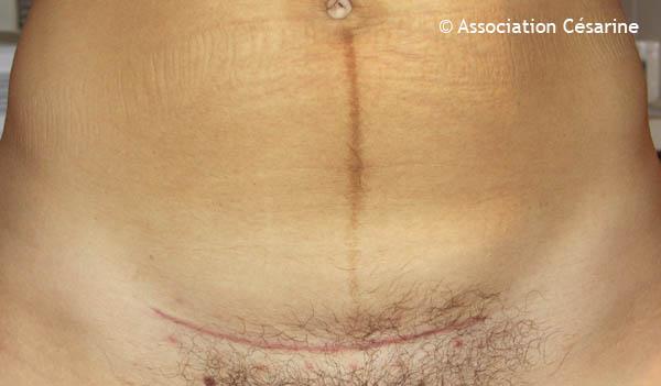 Une jolie cicatrice de césarienne, 7 semaiens post-op toujours sur le site www.cesarine.org