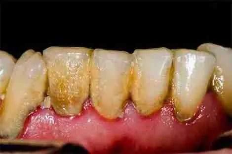 Paciente com higiene dental ruim