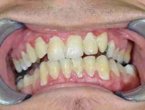 Higiene oral negligenciada