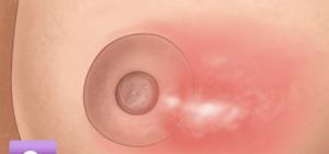vaciar bulto en el pecho. Prevenir y tratar mastitis