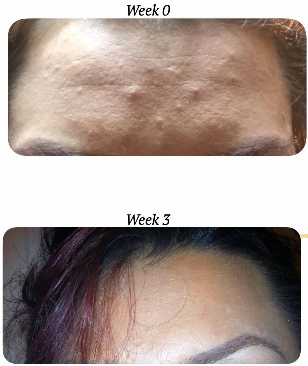 Product Testing Clear Skin Mask Result