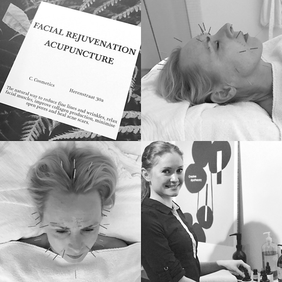 facial acupuncture Helen Turner