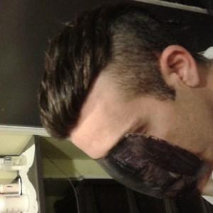Infoltimento capelli, protesi capelli