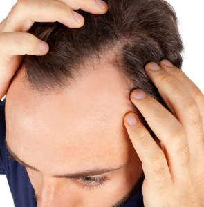 Hair loss casuses and treatments