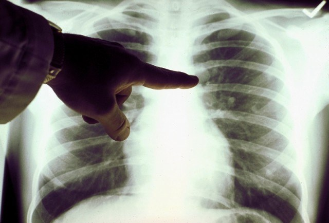 A doctor pointing at an X-ray of someone's lungs