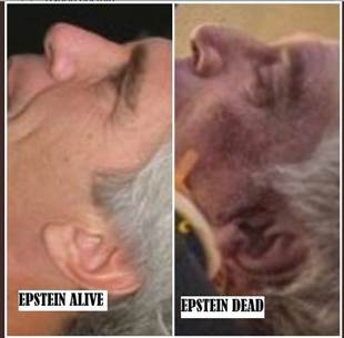 Image result for epstein ears