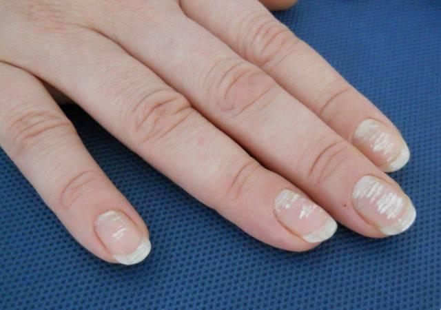 Risultati immagini per leuconichia unghie