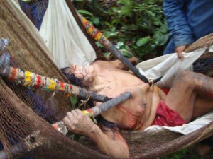 Buganey is in agony while being carried in a hammock to a doctor (source: http://polificcion.wordpress.com/)