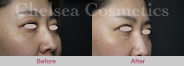 Tear Trough Treatment and Under Eye Fillers