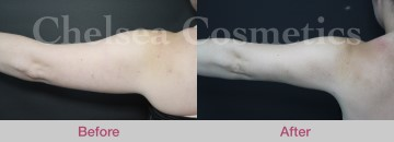 Arms Liposuction