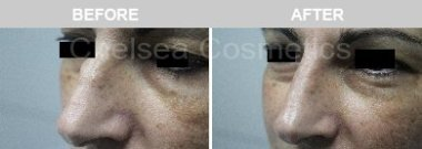 Before & After Cosmetic Treatments Gallery