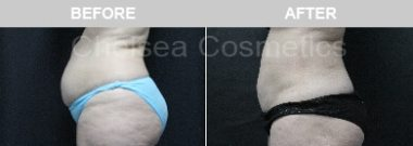Abdomen slim lipo before and after result