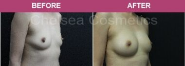 Breast Augmentation before-and-after