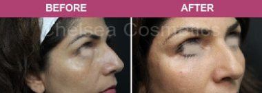 Fillers Tear Trough Before and after