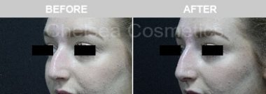 Nose fillers Before and After
