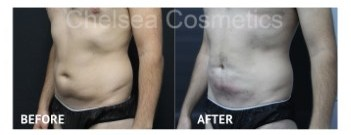 mens liposuction stomach before and after