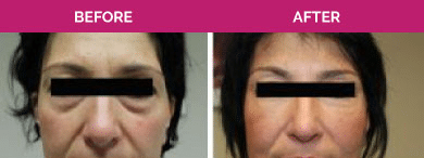 non surgical eye bag removal before and after