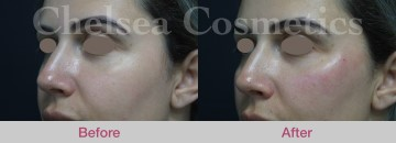 Cheek Fillers and Injections for Enhancement Melbourne