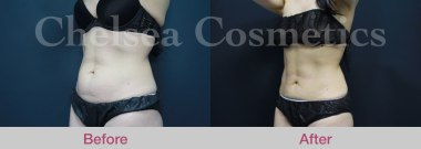 female stomach liposuction melbourne