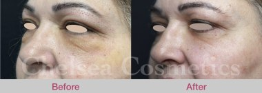 plasma injections for face