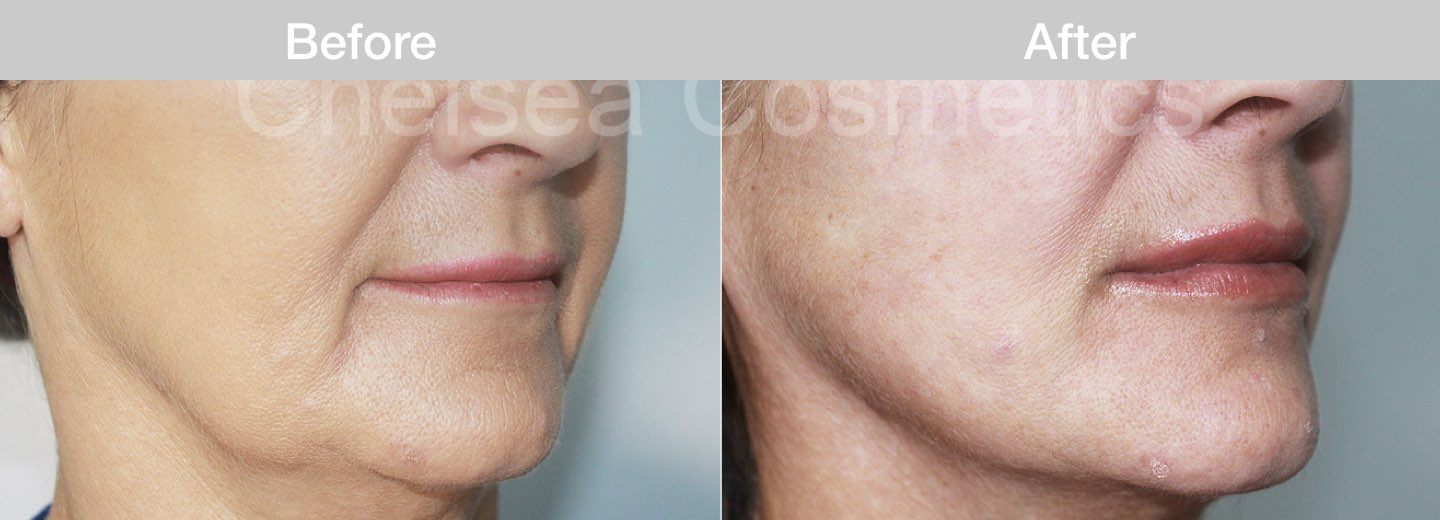 thread lift in melbourne cost