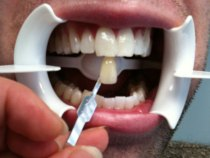 Teeth-Whitening-Toronto-3D-Dentistry-Patient-After-2