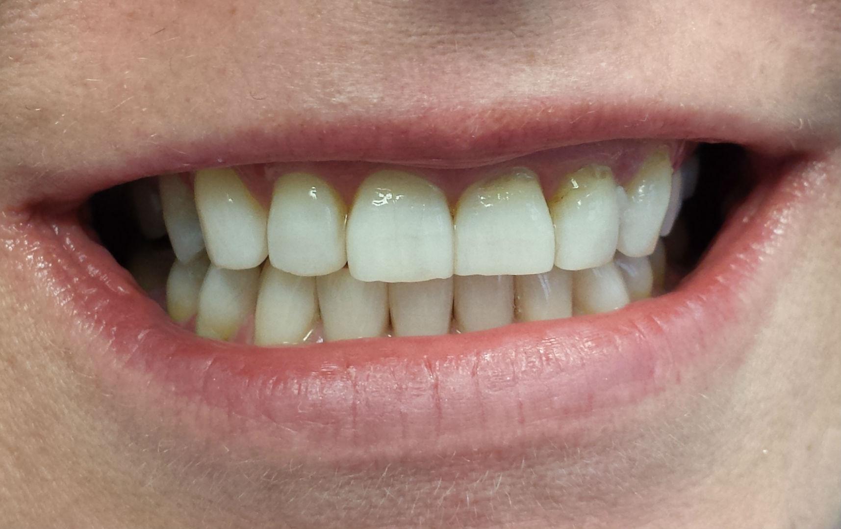Cherry Blossom Dentistry Toronto Teeth Whitening Toronto Before