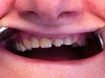 snap-on-smile-toronto-before-3D-dentistry-2