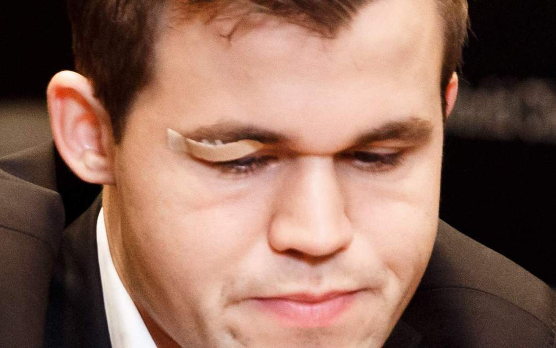 Magnus Carlsen's black eye