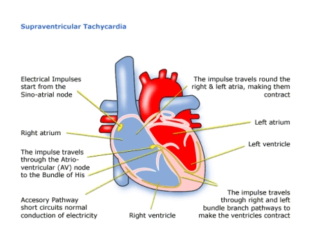 Childrens heart federation supraventricular tachycardia svt a babys heart beat is much faster than an adults you may remember hearing how fast it was before your child was born as the child gets older the heart ccuart Choice Image
