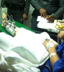 Alice Davies is treated for severe leg injuries at a Koh Samui hospital