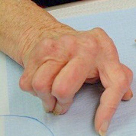 poliartrita reumatoida tratament biologic durere la nivelul țesutului umărului și articulațiilor