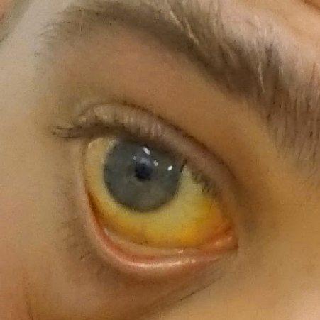 Papiloame in jurul ochilor