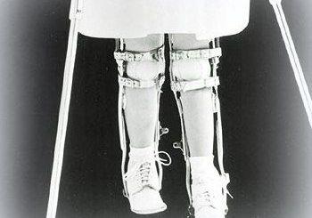 poliomielita-paralizia-infantila
