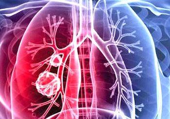 pneumoniile