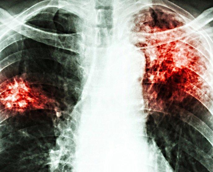 pierderea în greutate tuberculoză pulmonară