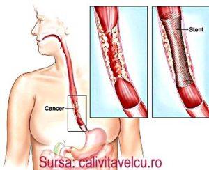 cancerul-esofagian