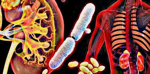 infectia-urinara