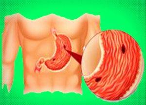 ulcerul-gastric-si-duodenal
