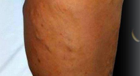 venele-varicoase-varicele