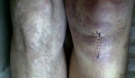New Rule Changes in Football Cause Increase In ACL Injuries