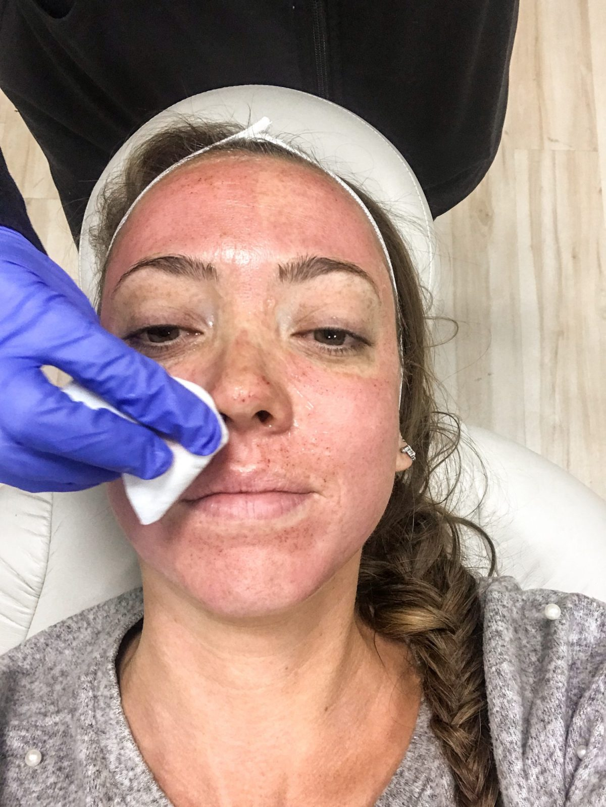 Everything you Need to Know about Microneedling - Affordable