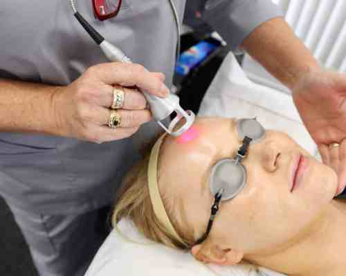 Chemical Peel and LED light therapy